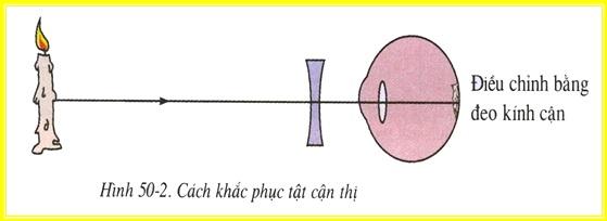 Cách khắc phục tật cận thị