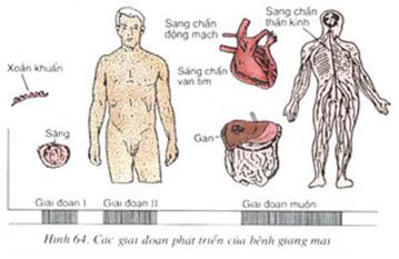 Giai đoạn phát triển bệnh giang mai