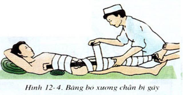 Băng cố định xương đùi