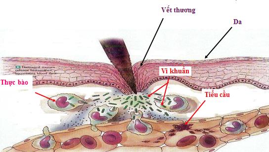 Phản ứng kháng viêm