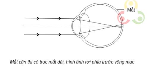 Mắt cận  thị