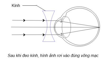 Mắt cận thị khi đeo kính cận
