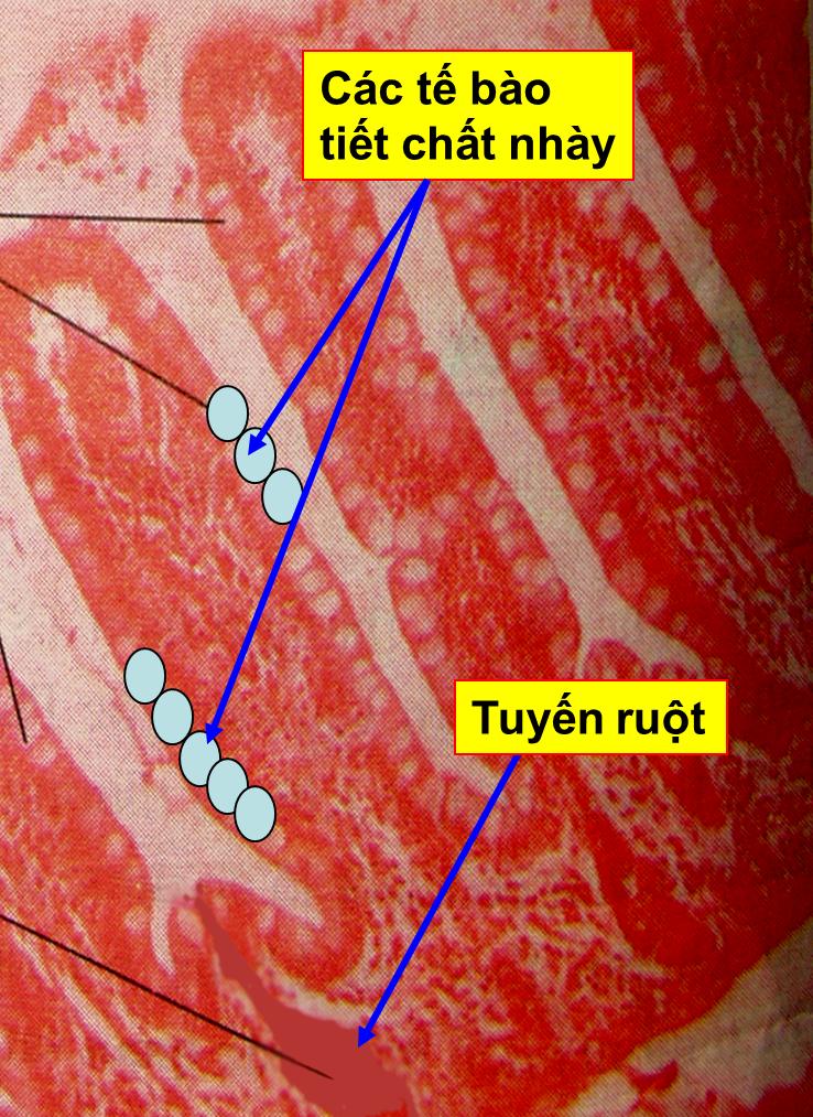 Tế bào tiết chất nhầy