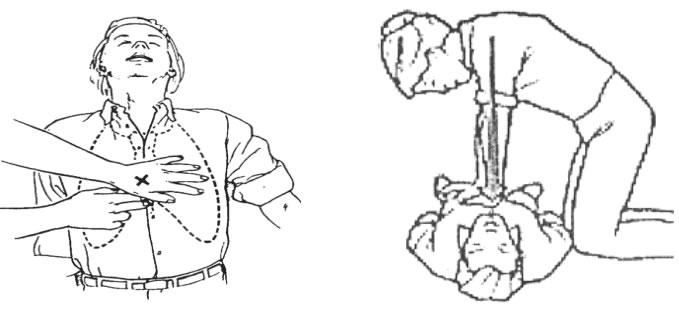 Hô hấp nhân tạo