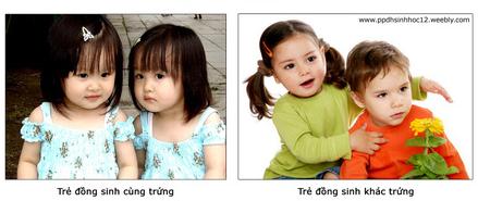 Trẻ đồng sinh